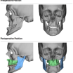 Pioneering Maxillofacial surgery performed at the Luton and Dunstable University Hospital