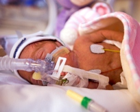 Premature baby in our NICU